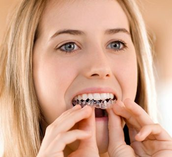 MTM/Invisalign Treatment in Thornhill, Vaughan, ON